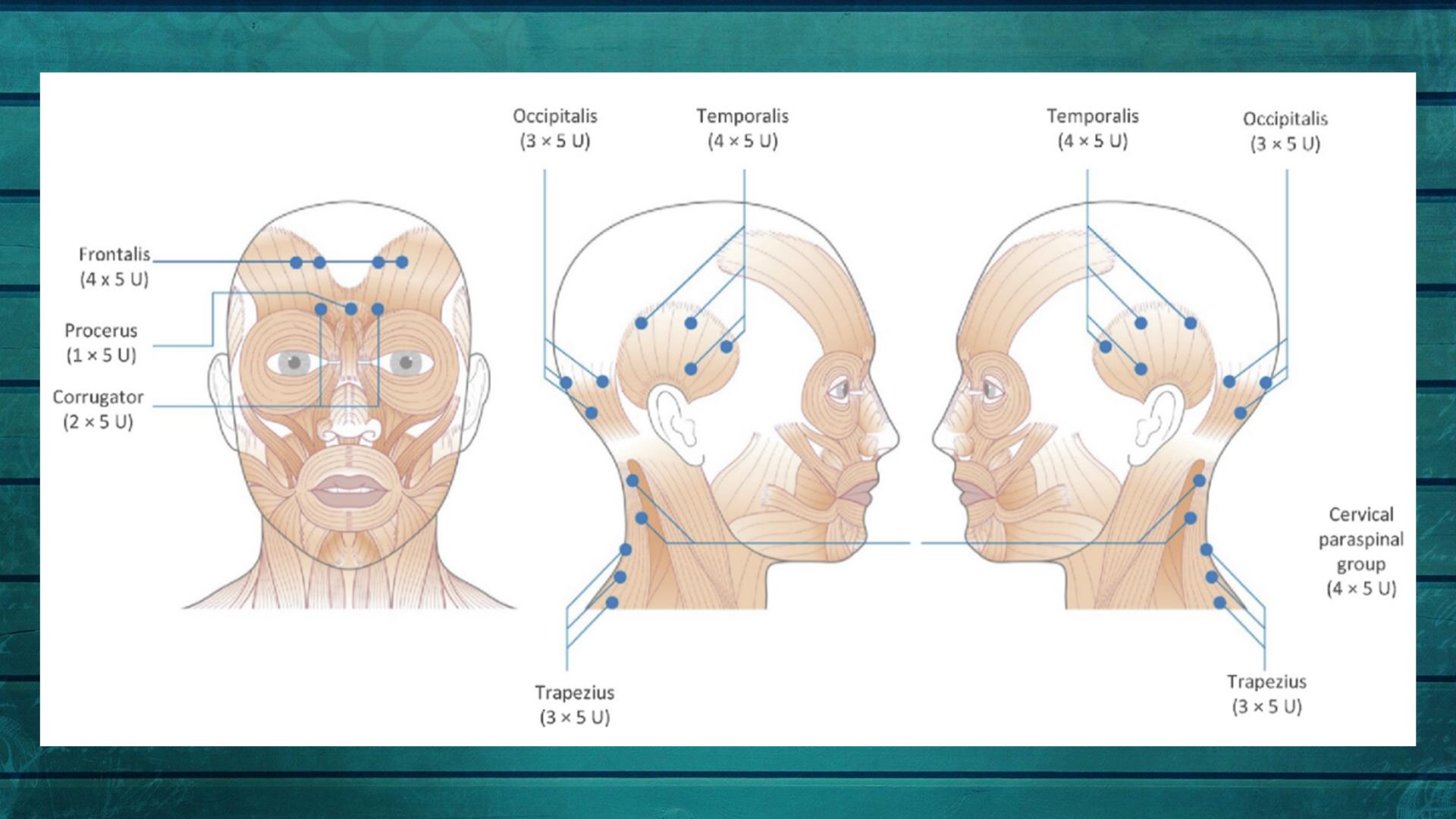 botox mot migrene